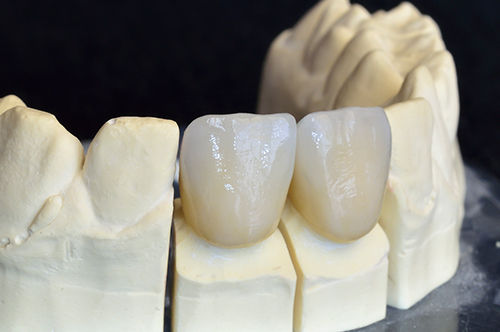 Ceramic Crowns in Baytown